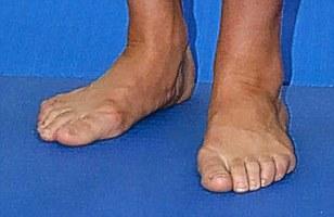 kate-pieds